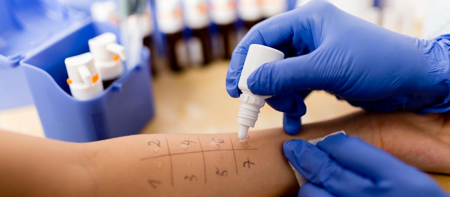 Come scoprire l'allergia : prick test e patch test
